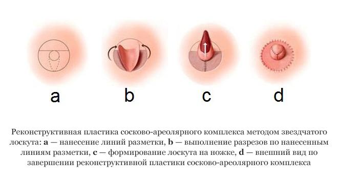 фото всех разновидностей сосков